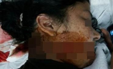 Mujer le cortó la cara a otra con un bisturí