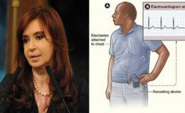 De qué se trata el Holter que le colocaron a la Presidenta