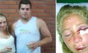 Su novio la golpeó hasta dejarla inconsciente dentro de un boliche y está libre