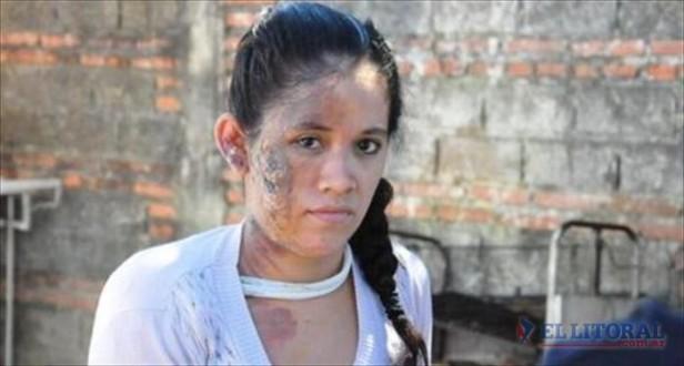 El novio de la mujer quemada declaró que otra la atacó por celos