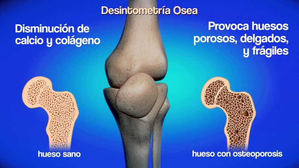 Campaña comunitaria-privada de detección y prevención de la osteoporosis