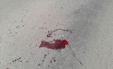 Nena mercedeña atropellada murió tras una semana de agonía