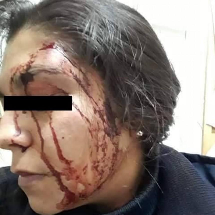 Agente fue atacada por una patota: habrían querido robarle el arma