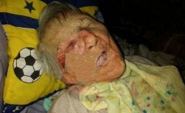 Abuela, con problemas motrices, fue brutalmente agredida por su ex pareja