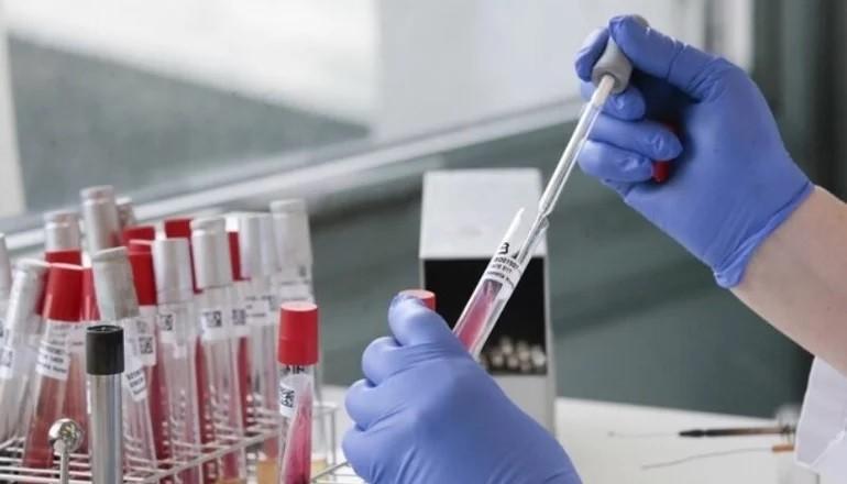 Confirman un nuevo caso de coronavirus y otra localidad de Corrientes retrocede de fase
