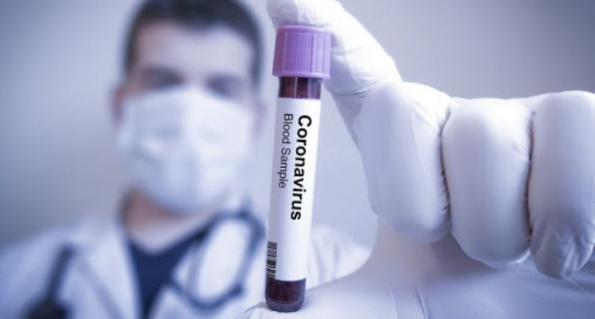 Corrientes registró 32 casos de coronavirus: 26 son de Capital