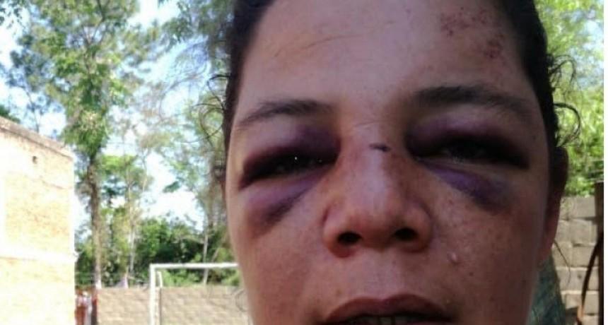 Policiales: Detuvieron al autor de la feroz golpiza contra Claudia Formanowicz