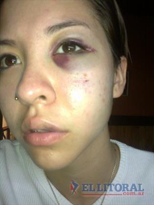 Una chica denunció en Facebook la golpiza que le dio su ex pareja